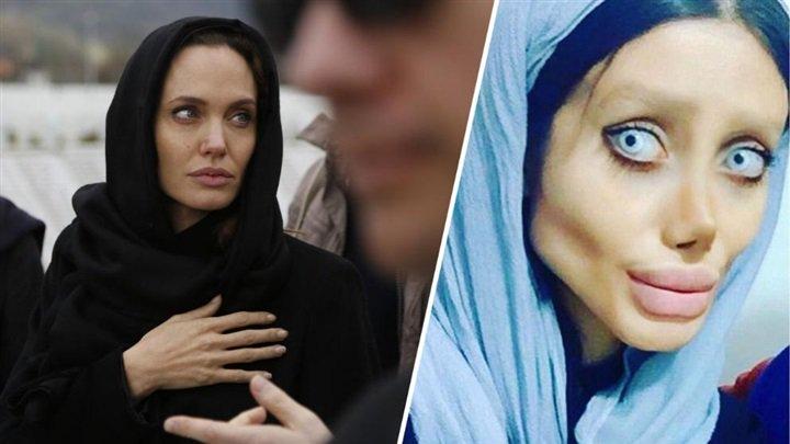 مرعب هكذا أصبحت فتاة إيرانية بعدما أجرت 50 عملية تجميل